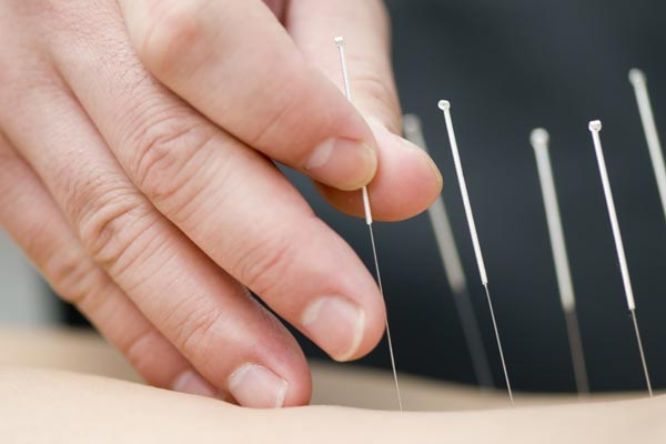 dry needling therapy for fibromyalgia