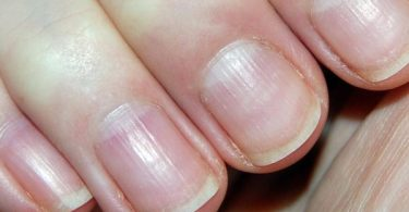 fibromyalgia and Brittle Nails