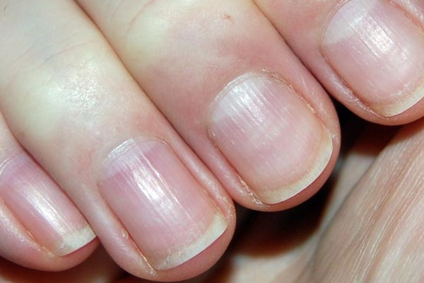 Brittle Nails: Can Fibromyalgia Be Blamed? | Welcome to Fight ...